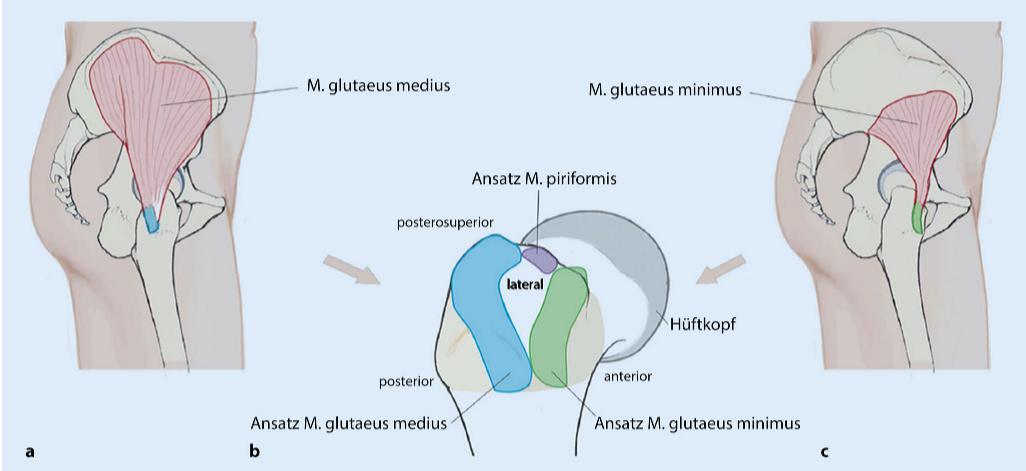 Verletzungen der Glutealmuskulatur